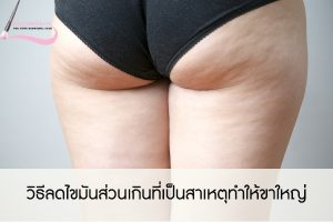 วิธีลดไขมันส่วนเกินที่เป็นสาเหตุทำให้ขาใหญ่